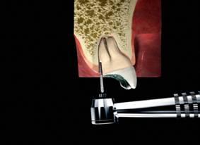 Osteotomie vor Wurzelrestentfernung