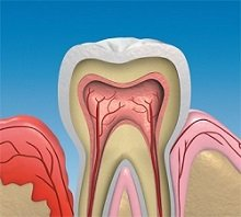 Eine unbehandelte Entzündung der Zahnfleischtaschen kann zu einer Parodontose führen, die Zahnverlust und Knochenabbau bedingen kann.