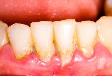 Parodontose mit Zahnfleischrückgang
