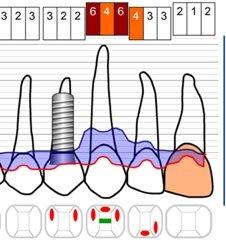 Im Vorfeld der Behandlung entwickelt der Zahnarzt einen genauen Plan zur Parodontosebehandlung.