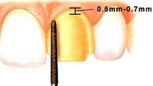 Präparation der Zähne für Veneers