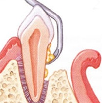 Diagnostiziert der Zahnarzt eine Parodontose, ist eine aufwendigere Parodontosebehandlung nötig. Die Behandlung erfolgt unter gezieltem Einsatz von Antibiotika und der intensiven Reinigung der Zahnfleischtaschen mittels spezieller Instrumente.