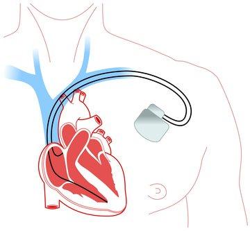 Risikopatient: Herzschrittmacher