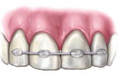 Schienung bei reponiertem Zahn
