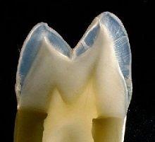 Der Aufbau der Zahnkrone setzt sich aus mehreren Schichten zusammen, die zum Teil mit dem Aufbau des restlichen Zahnes identisch sind.