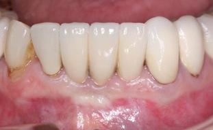 Schmal Implantatversorgung im Unterkiefer