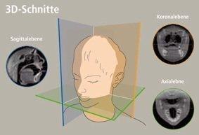 Mithilfe der Tomographie können dreidimensionale Bilder des Inneren des menschlichen Körpers erzeugt werden für bessere Diagnose- und Behandlungsverfahren.