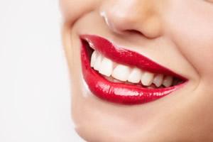 Schöne Zähne - Bleichen und Reinigung