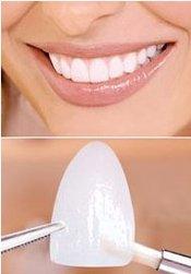 Schöne Zähne mit Lumineers