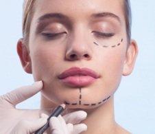 Schönheitschirurgie im Gesichtsbereich