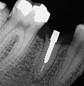 Schraubenaufbau Titan Röntgenbild