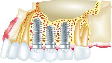 Wird eine Zahnimplantation nach einem Sinuslift durchgeführt, können Schmerzen und blaue Flecken auftreten.