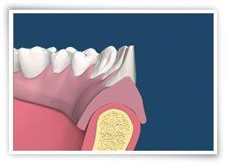 Nach extremen Knochenverlust können aber auch Schlotterkämme und so genannte Lappenfibrome entstehen.