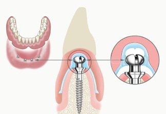 Das Mini Implantat lässt sich mit kleinen Verbindungsteilen problemlos auch in bereits bestehende Prothesen einarbeiten.