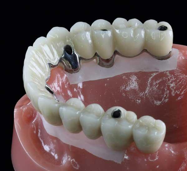 Durch lange Schnell Implantate kann der zeitraubende Knochenaufbau vermieden und das Einwachsen beschleunigt werden.