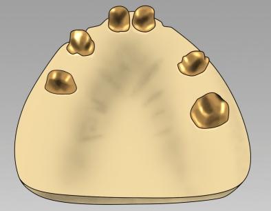 Teleskopkronen aus Goldlegierungen