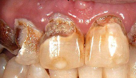 Zahnverfärbungen: sichtbaree Folgen der Zahnkaries