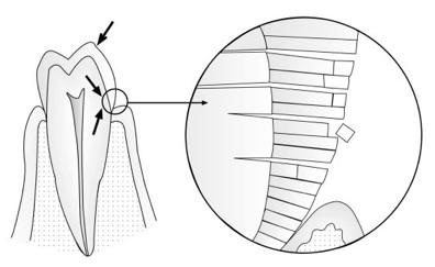Überbelastung am Zahn - Fraktur von Schmelzprismen