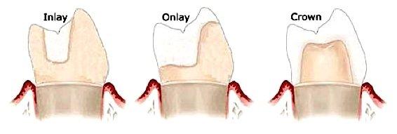 Unterschiede zwischen Inlay, Onlay oder Crown