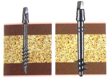 Die Mini Implantate sind eine schnell belastbare und kostengünstige Möglichkeit, die Prothese zu stabilisieren.