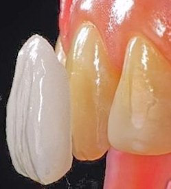 Keramikschale als Zahnverschönerung