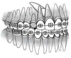 Schief im Kiefer liegender Zahn oder Zahnfragment