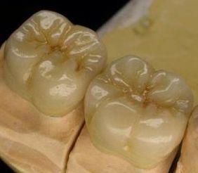 Die Haltbarkeit von Vollkeramikkronen kann bei guter Pflege bis zu 15 Jahre betragen.