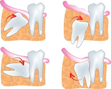 Bei der Osteotomie werden unter der Zahnreihe liegende Zähne mit Schiefstand, wie z.B. bei Weisheitszähnen, chirurgisch entfernt.
