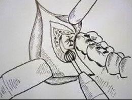 Nach der Betäubung wird bei der Weisheitszahnentfernung das Zahnfleisch zur Seite geklappt und der Zahn entfernt. Danach wird die Schleimhaut wieder vernäht.