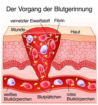 Warikos in die Schwangerschaft des Fotos