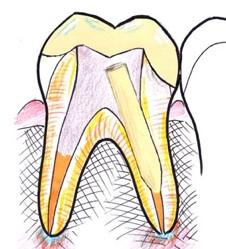 Wurzelaufbau für Zahnkrone