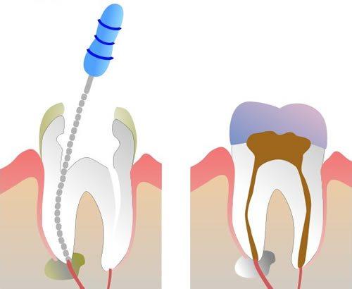 Die moderne Form der Wurzelbehandlung beinhaltet den Einsatz chemischer Spülungen. So können Verstopfungen des Kanals vermieden werden.
