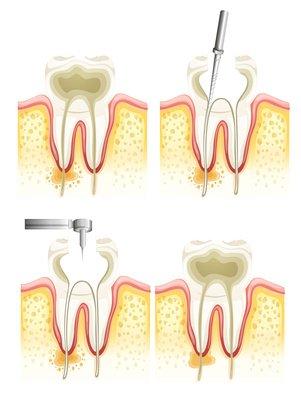 Ist die Zahnmarkentzündung irreversibel, wird eine Wurzelbehandlung durchgeführt. So kann sich die Entzündung nicht weiter ausbreiten, da der Nerv abgetötet und der Hohlraum versiegelt ist.