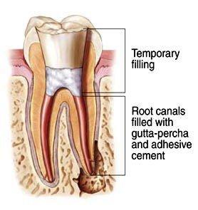 Wenn der Zahnkanal beschädigt ist, stirbt der Zahn. Dann kann nur eine Wurzelbehandlung den Zahn erhalten.