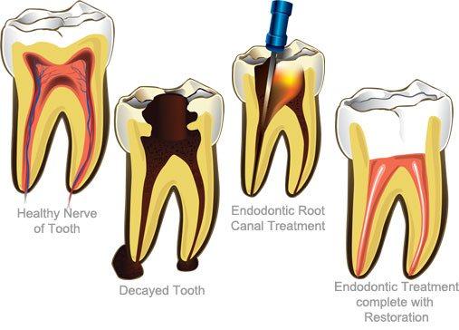 Sind die Zähne so stark geschädigt, dass sie entfernt werden müssten, kann eine Wurzelbehandlung den zerstörten Zahn retten.