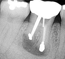 Nach der Resektion der Zahnwurzel fertigt der Zahnarzt ein Röntgenbild an, um den Erfolg zu kontrollieren.