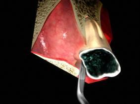 Wichtig ist, die Wurzelreste komplett zu entfernen