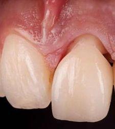 Zahnüberkronung mit Vollkeramikkrone