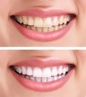 Verfärbungen der Zähne können meist durch professionelle Zahnreinigung und Bleaching entfernt werden. In anderen Fällen können Veneers helfen, Ihnen ein schönes, weißes Lächeln zu schenken.