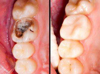 Zahnbehandlung von Karies mit einer Keramikkrone