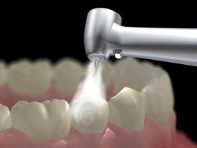Zahnarztbohrer
