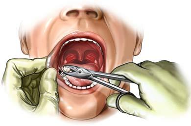 Zahnextraktion im Unterkiefer