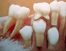 Korrekter Zahndurchbruch im Wechselgebiss