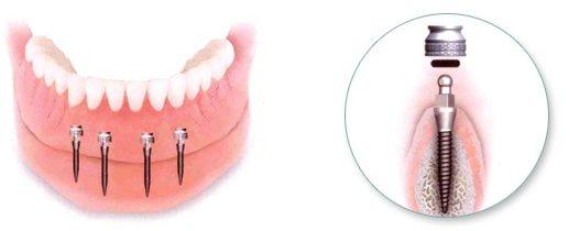 Schmale Implantate ermöglichen an schwierigen Stellen wie den Frontzähnen Zahnersatz.