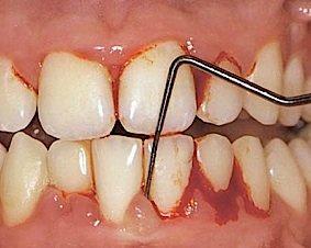 Blutung des Zahnfleischs nach Sondierung