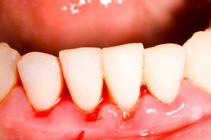 Die Zahnfleischentzündung (Gingivitis) kann ein Auslöser für sein