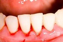 Ein entzündlicher Prozess des Zahnfleisches