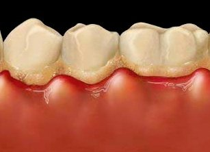 Zahnfleischentzündung und Plaqueanlagerung