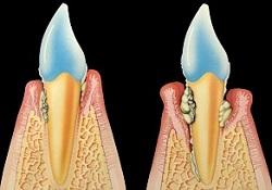 In Folge einer Parodontose wird Zahnfleischgewebe zerstört und das Zahnfleisch bildet sich zurück. Ist das Immunsystem geschwächt oder die Durchblutung gestört, erhalten aggressive Bakterien eine Angriffsfläche.