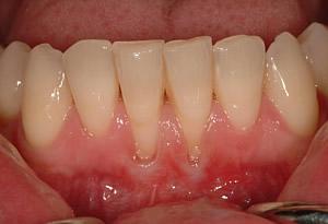 Zahnfleisch zieht sich zurück